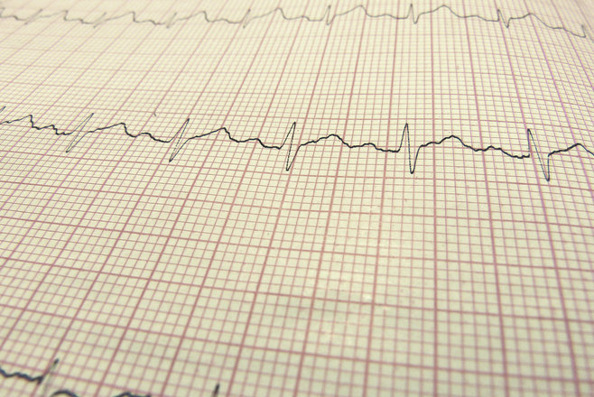 Jak wygląda badanie EKG?