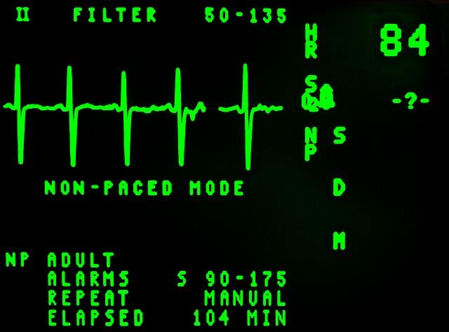 Korzyści płynące ze zrobienia sobie badania EKG