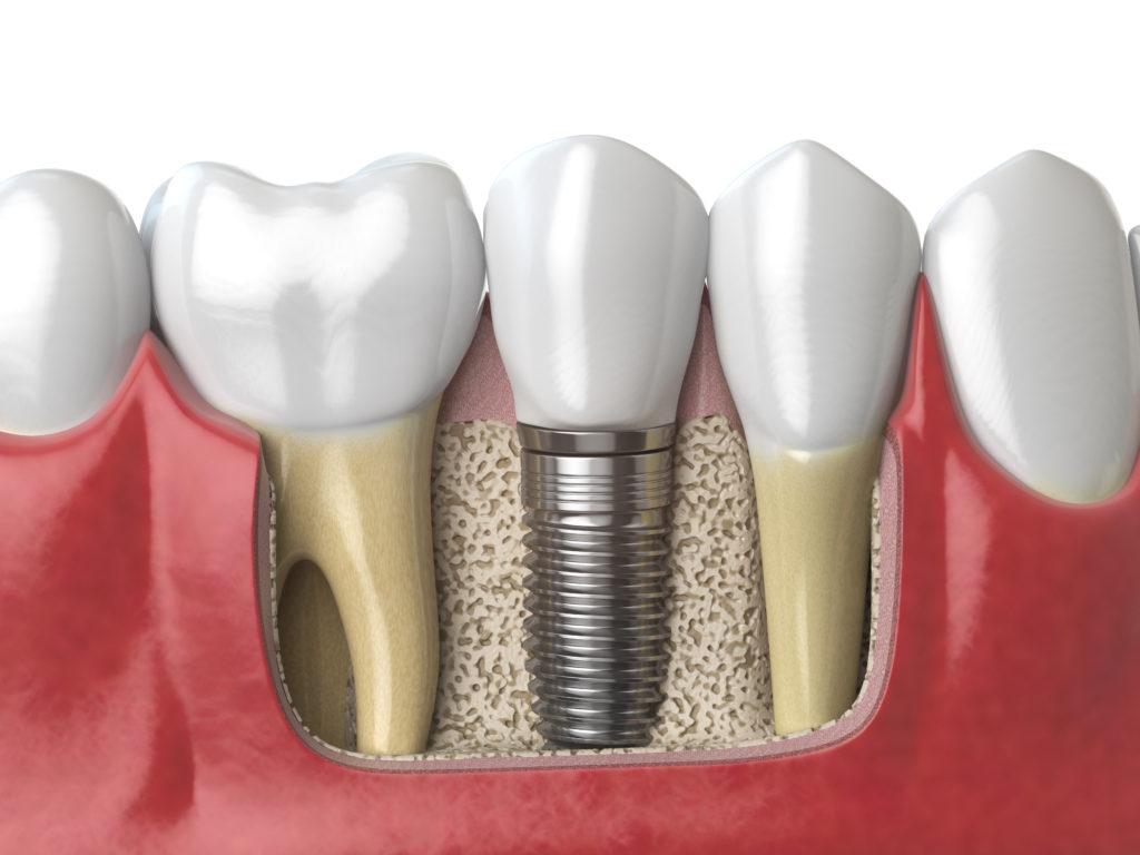implanty zębów wrocław