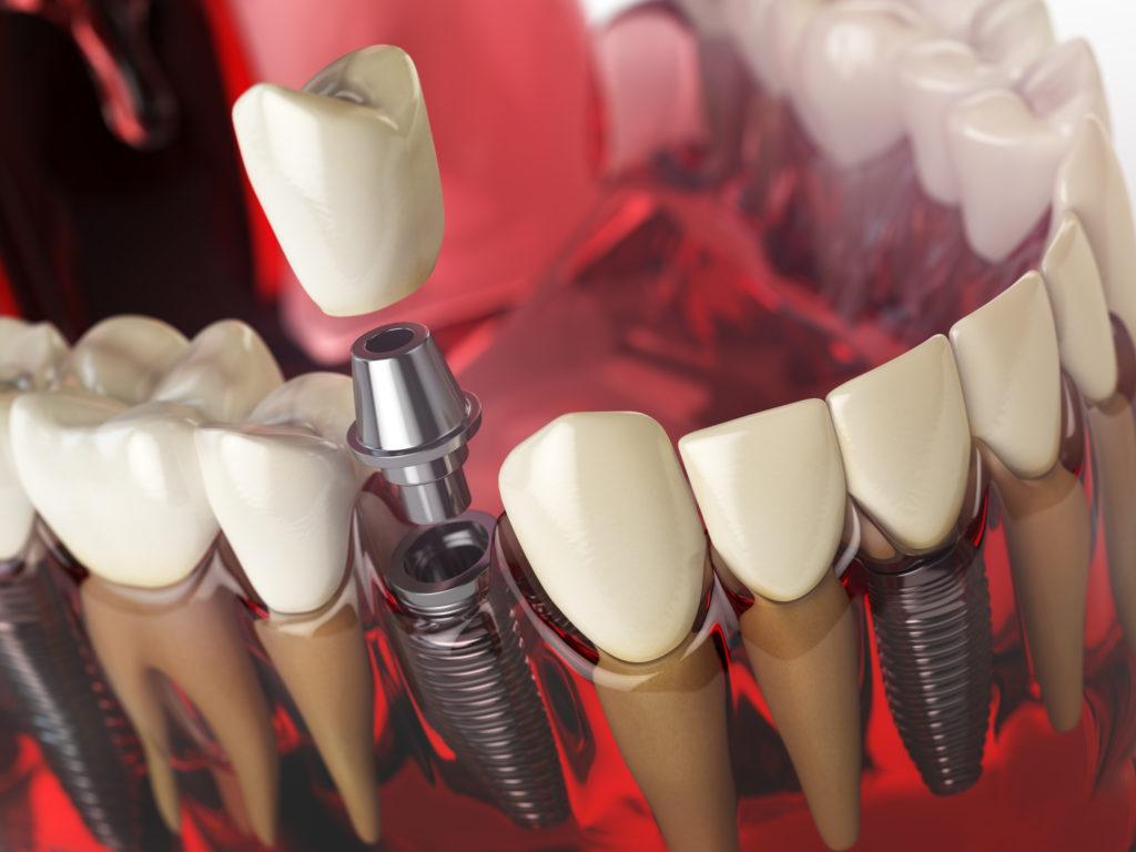 leczenie zębów Lublin